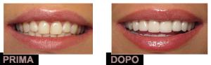 faccette dentali applicazione